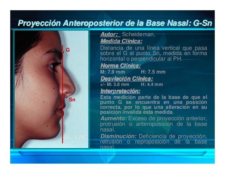 Proyección Anteroposterior del Labio Superior:                    Sn-Ls                       Autor: Fish y Epker, Scheide...