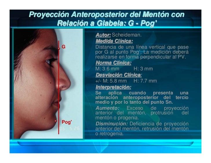 Proyección Anteroposterior del Mentón en Relación con la                  Base Nasal: Sn-Pog'                            A...