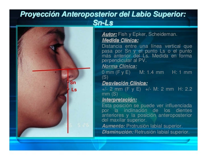 Proyección Anterior del Puente Nasal con     Relación al Globo Ocular: N' - Pu                    Autor: McBride.         ...