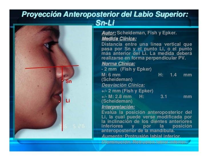 Proyección Anteroposterior de la Mejilla en      Relación al Globo Ocular: M - Pu                       Autor: McBride.   ...