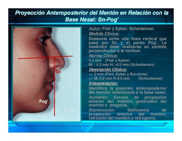 Ángulo de Convexidad Facial: Gn-Sn / Sn-Pog'             G                      Autor: Legan y Burstone.                  ...