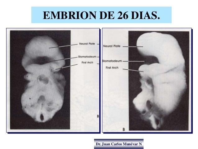 Dr. Juan Carlos Munévar N EMBRION DE 26 DIAS.