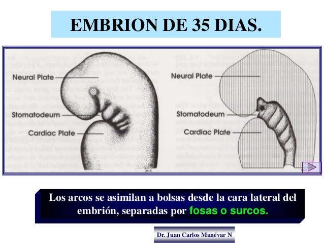 Dr. Juan Carlos Munévar N EMBRION DE 35 DIAS. Los arcos se asimilan a bolsas desde la cara lateral del embrión, separadas ...