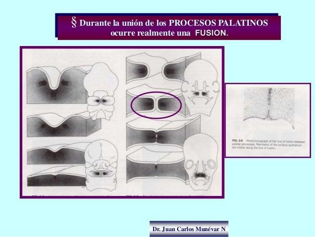 Dr. Juan Carlos Munévar N § Durante la unión de los PROCESOS PALATINOS ocurre realmente una FUSION.