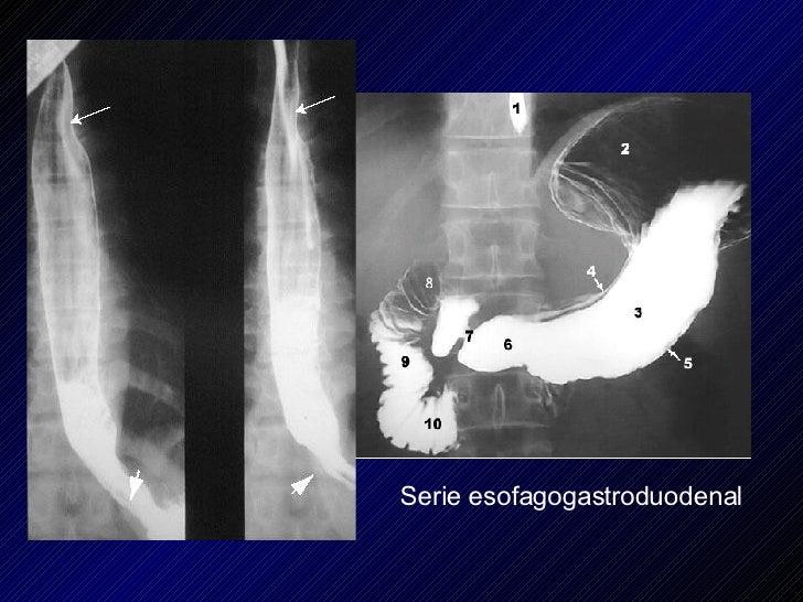 Serie esofagogastroduodenal