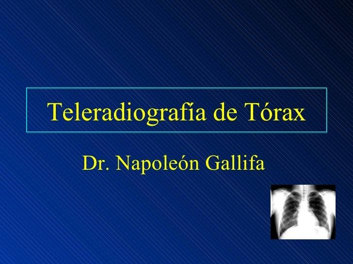 Teleradiografía de Tórax Dr. Napoleón Gallifa