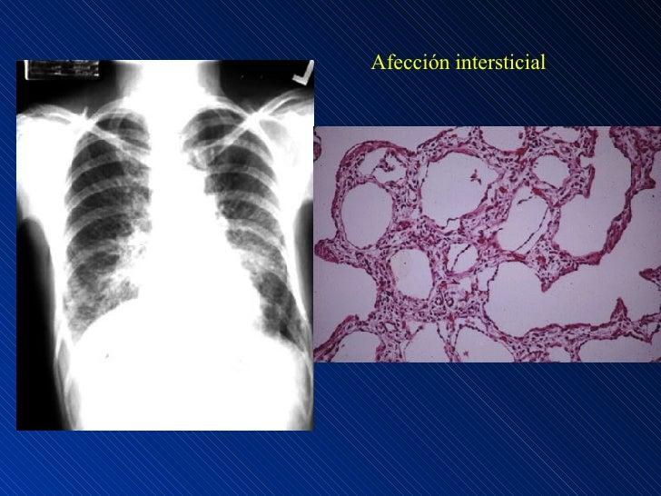 Afección intersticial