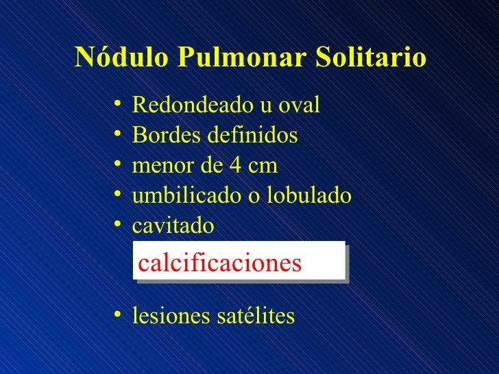 Nódulo Pulmonar Solitario <ul><li>Redondeado u oval </li></ul><ul><li>Bordes definidos </li></ul><ul><li>menor de 4 cm </l...