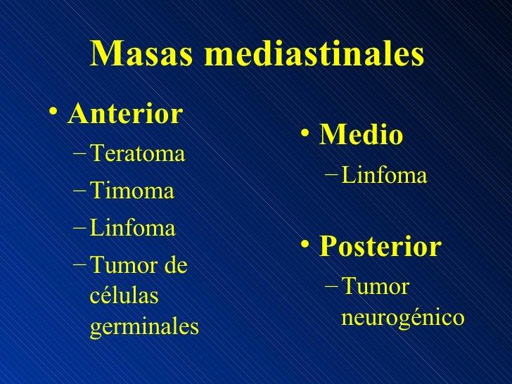Masas mediastinales <ul><li>Anterior </li></ul><ul><ul><li>Teratoma </li></ul></ul><ul><ul><li>Timoma </li></ul></ul><ul><...