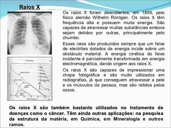 <ul><li>Os raios X foram descobertos, em 1895, pelo físico alemão Wilhelm Röntgen. Os raios X têm frequência alta e possue...