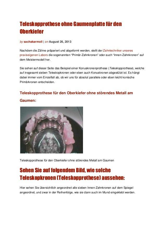 Teleskopprothese ohne Gaumenplatte für den Oberkiefer by sachakarmoll | on August 26, 2013 Nachdem die Zähne präpariert un...