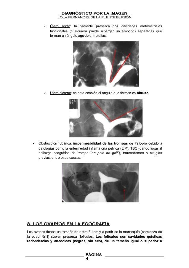 Estudio radiológico del aparato genital femenino. Diagnóstico por la …
