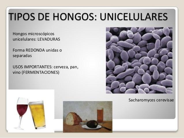 Tema 10 hongos y plantas - Tipos de hongos en la pared ...
