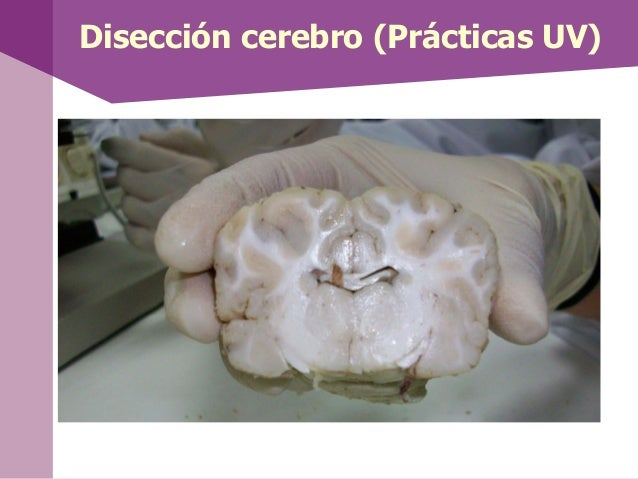 Disección cerebro (Prácticas UV)