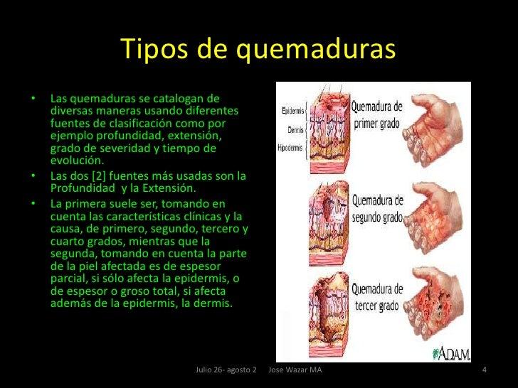 Tema ix quemaduras for Quemadura cuarto grado