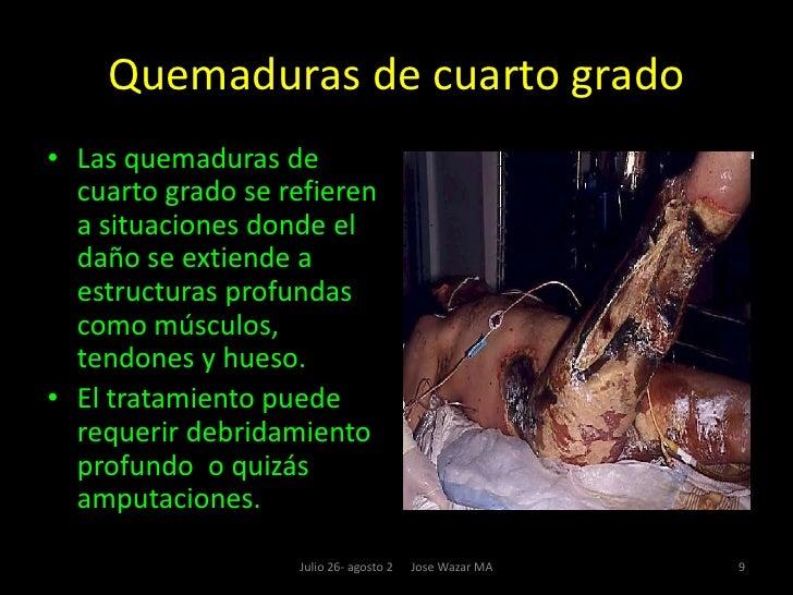 Tema ix - Quemaduras