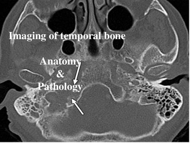 Imaging Of Temporal Bone