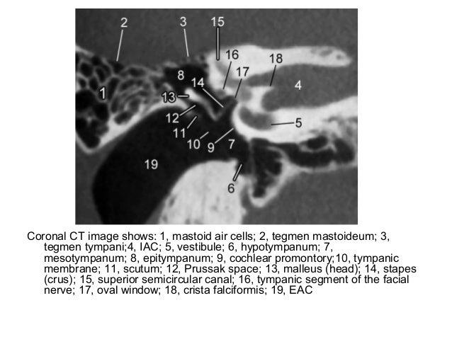 Diagnostic Imaging Of Temporal Bone