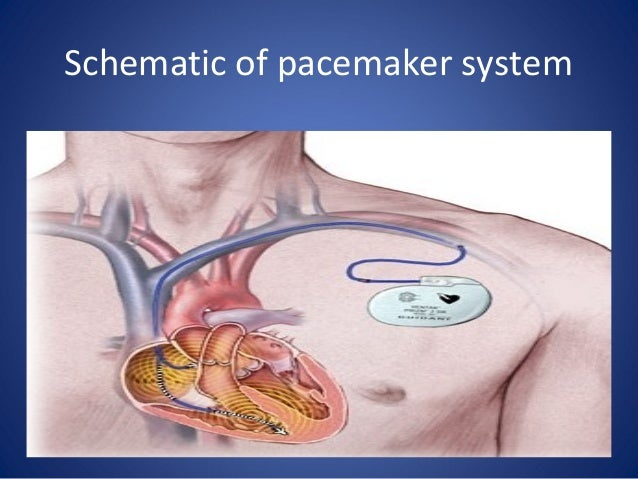Medtronic Single And Dual Chamber Temporary Pacemakers