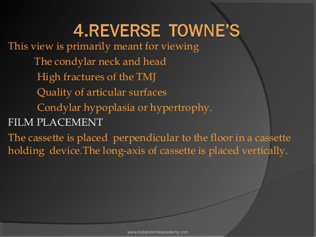 This view is primarily meant for viewing The condylar neck and head High fractures of the TMJ Quality of articular surfa...