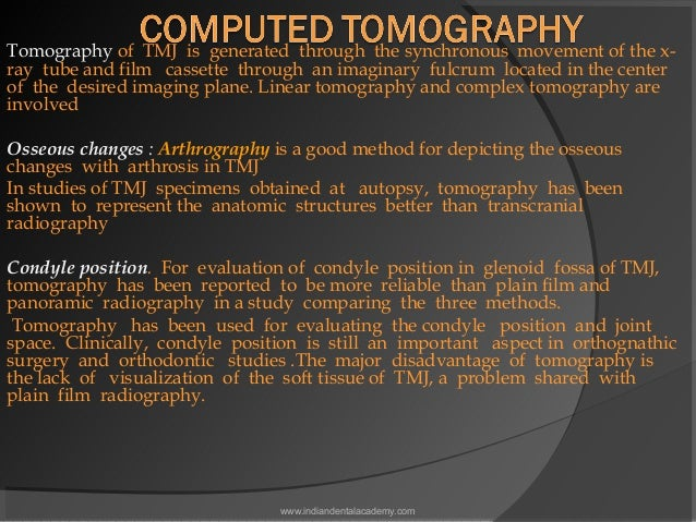Tomography of TMJ is generated through the synchronous movement of the x- ray tube and film cassette through an imaginary ...
