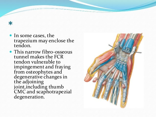 Tendinopathies of wrist and hand
