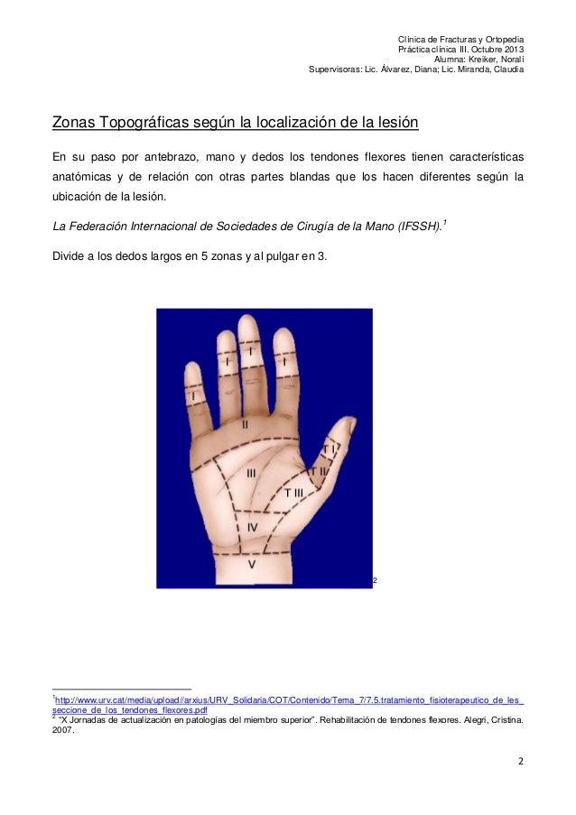 Protocolos Post quirúrgicos de Tendones Flexores