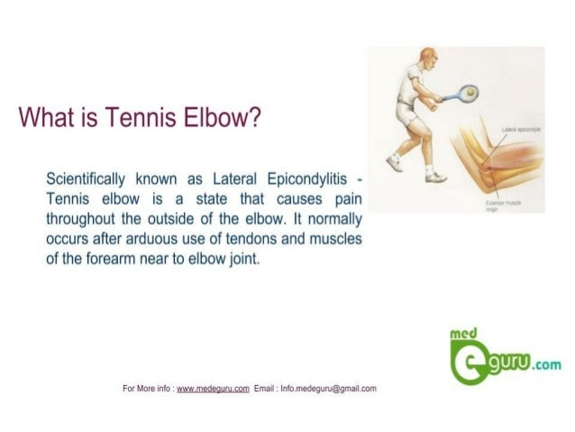 What is Tennis Elbow?   Scientifically known as Lateral Epicondylitis - k ~72 Tennis elbow is a state that causes pain  thr...