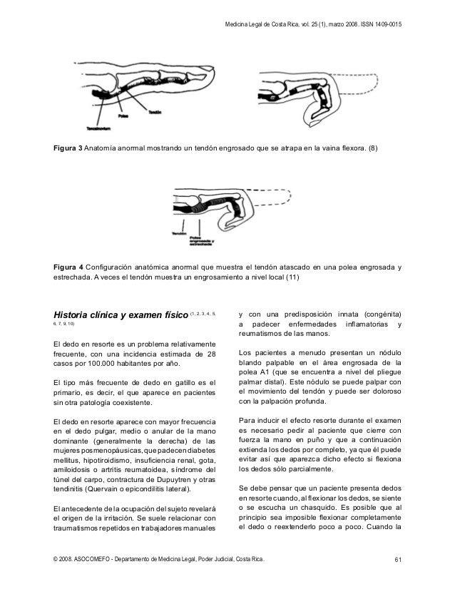 Contemporáneo A1 Anatomía Pulgar Polea Embellecimiento - Anatomía de ...