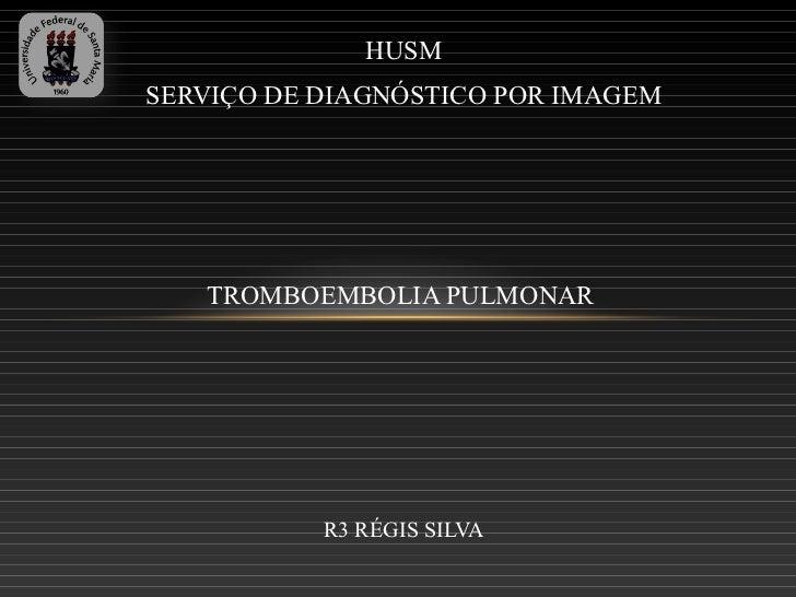 HUSMSERVIÇO DE DIAGNÓSTICO POR IMAGEM   TROMBOEMBOLIA PULMONAR           R3 RÉGIS SILVA