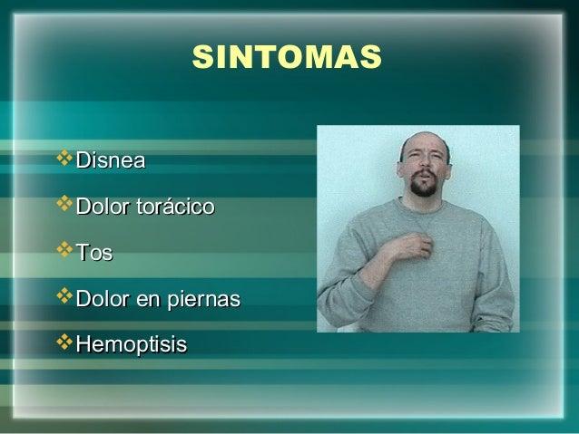 SINTOMASDisneaDisneaDolor torácicoDolor torácicoTosTosDolor en piernasDolor en piernasHemoptisisHemoptisis