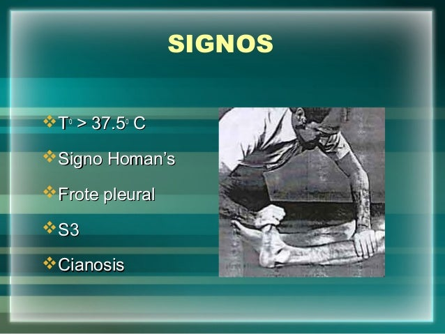 SIGNOSTToo> 37.5> 37.5ooCCSigno Homan'sSigno Homan'sFrote pleuralFrote pleuralS3S3CianosisCianosis