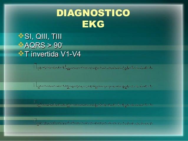 DIAGNOSTICOEKGSI, QIII, TIIISI, QIII, TIIIAQRS > 90AQRS > 90ººT invertida V1-V4T invertida V1-V4