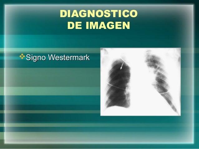 DIAGNOSTICODE IMAGENSigno WestermarkSigno Westermark
