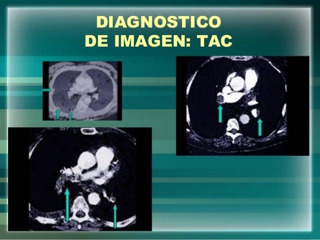DIAGNOSTICODE IMAGEN: TAC
