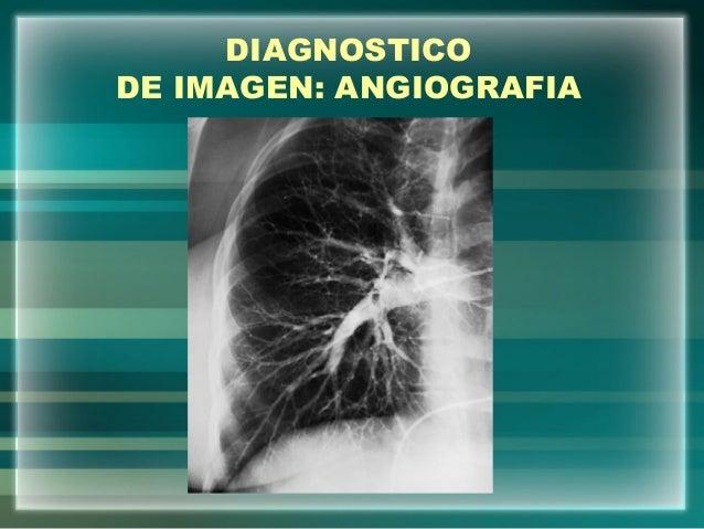 DIAGNOSTICODE IMAGEN: ANGIOGRAFIA