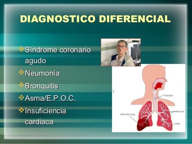 DIAGNOSTICO DIFERENCIALSíndrome coronarioSíndrome coronarioagudoagudoNeumoníaNeumoníaBronquitisBronquitisAsma/E.P.O.C....