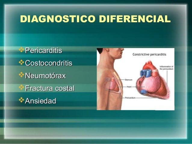 DIAGNOSTICO DIFERENCIALPericarditisPericarditisCostocondritisCostocondritisNeumotóraxNeumotóraxFractura costalFractura...