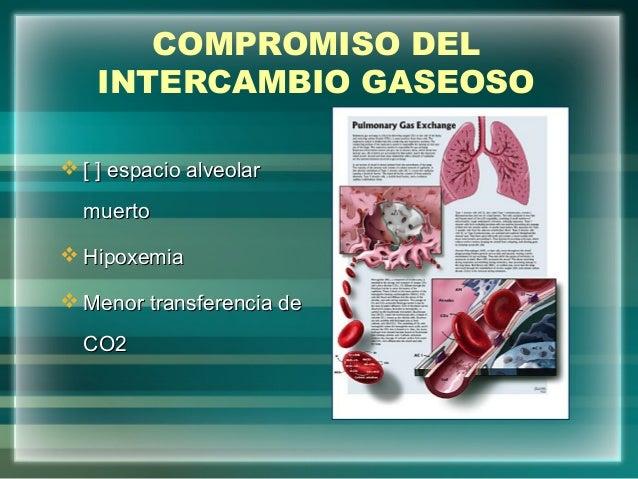 COMPROMISO DELINTERCAMBIO GASEOSO [ ] espacio alveolar[ ] espacio alveolarmuertomuerto HipoxemiaHipoxemia Menor transfe...