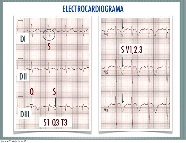 Resultado de imagen para signos ecg tromboembolismo pulmonar