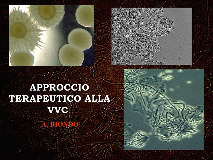 APPROCCIO TERAPEUTICO ALLA VVC  A. BIONDO