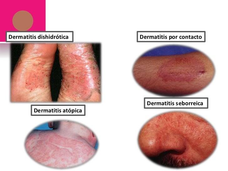 El lavado del niño con atopicheskim por la dermatitis