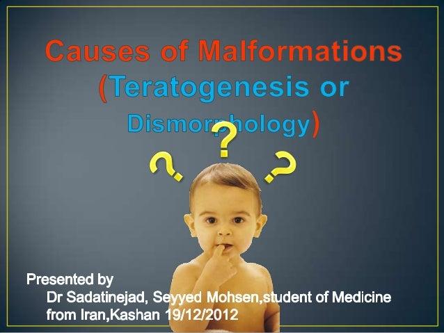 Teratology teratogenesis-birth defect-congenital malformation- anomaly(hereditary) abnormality تراتوژنیستیه تراتولوژی Slide 2