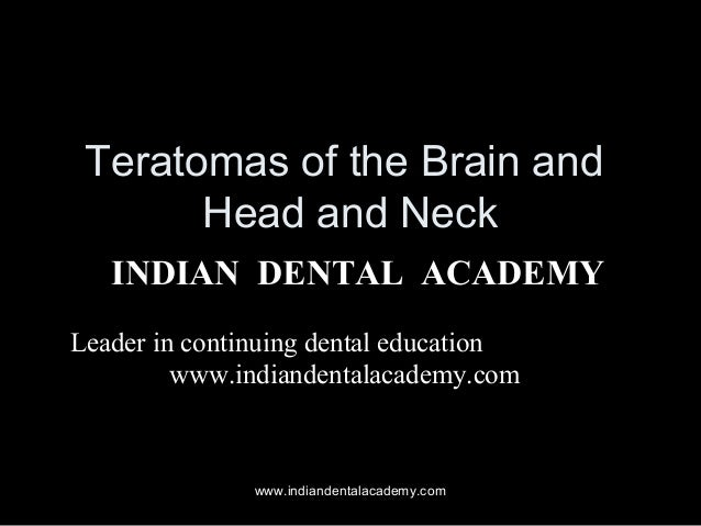 Teratomas of the Brain and Head and Neck INDIAN DENTAL ACADEMY Leader in continuing dental education www.indiandentalacade...