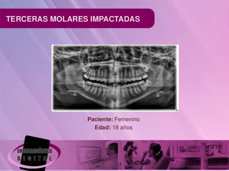 TERCERAS MOLARES IMPACTADAS                Paciente: Femenino                  Edad: 18 años