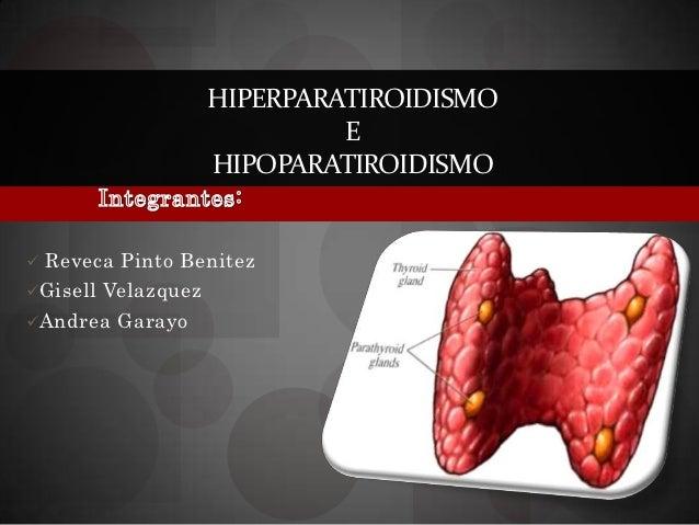 HIPERPARATIROIDISMO                             E                    HIPOPARATIROIDISMO Reveca Pinto BenitezGisell Velaz...