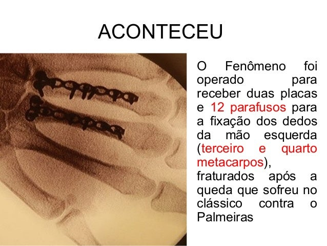 Terminologia anatomica Slide 3