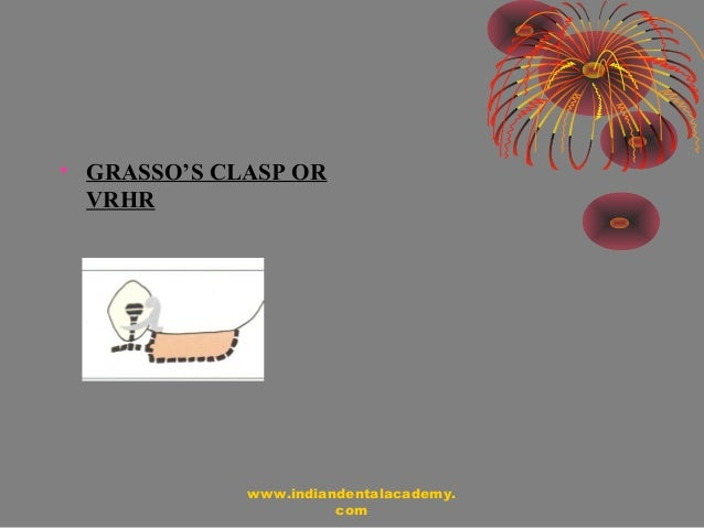 equipoise dental clasp