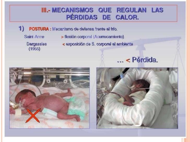 Termoregulación del neonato e incubadora