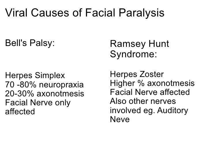 Facial nerve bells palsy herpes simplex